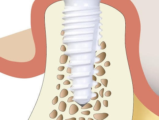 Whole Body Dental Implants 2