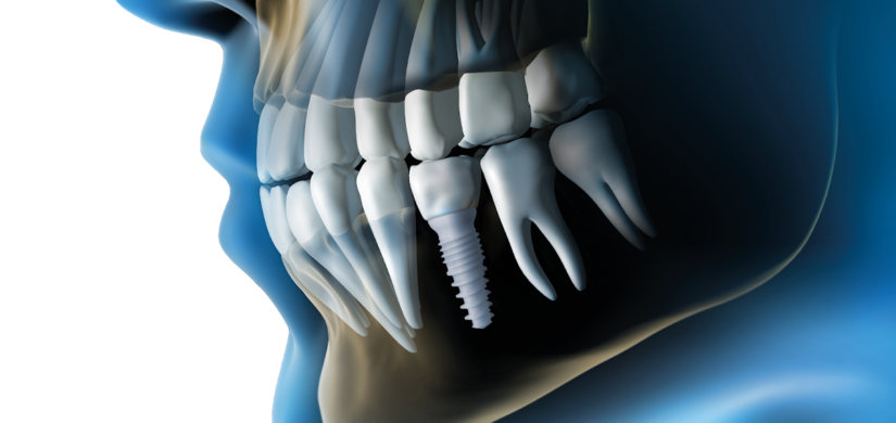 Whole Body Dental Implants 3
