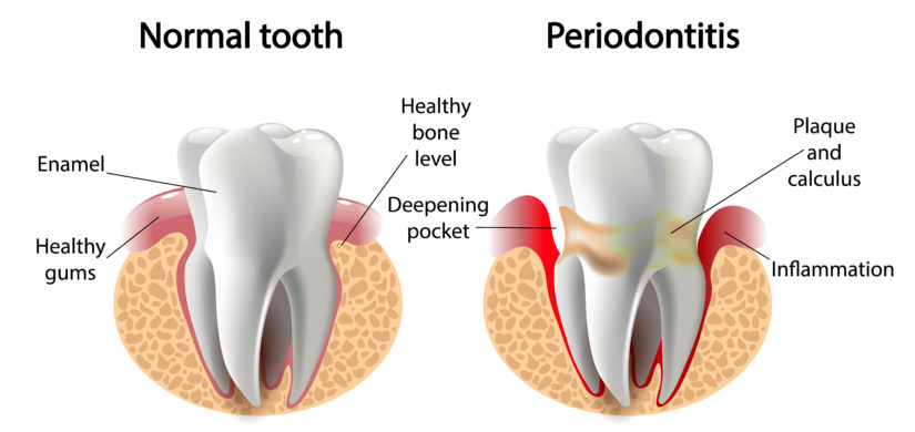 Whole Body Dental Periodontal Diseases